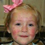Кропив'янка у дітей: причини, симптоми і лікування