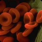 Анемія 1 ступеня при вагітності