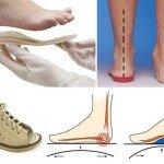 Вимоги до дитячого ортопедичного взуття